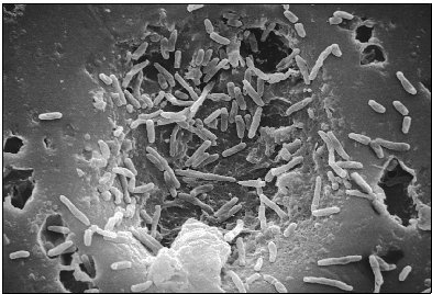 Single-celled bacteria infect a host. These organisms are far simpler creatures than their multicelled counterparts.
